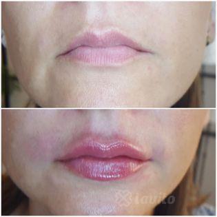 Korekcja kształtu ust Olsztyn