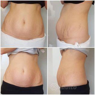 Usuwanie tkanki tłuszczowej i cellulitu Olsztyn