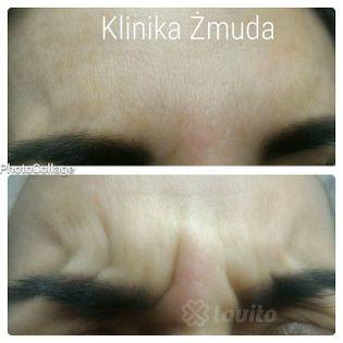 Botox Katowice