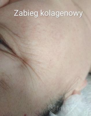 Zabiegi na twarz Bydgoszcz