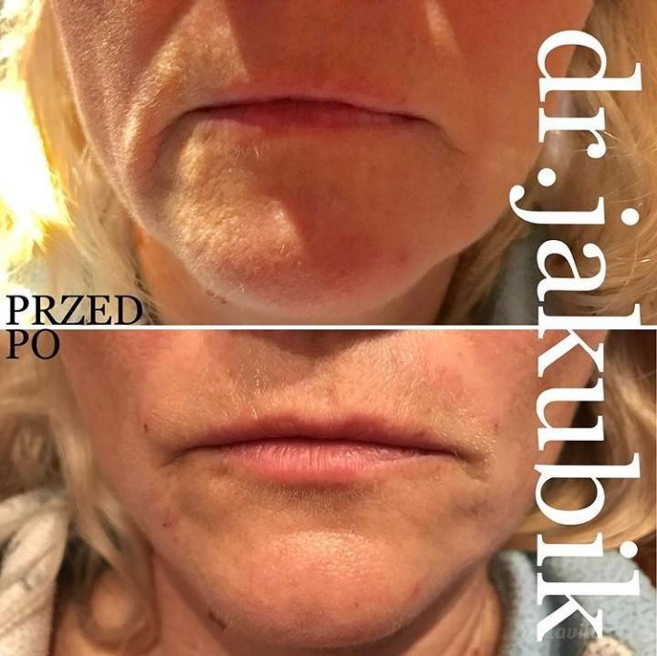 Skin Beauty Kosmetyczka Spa Medycyna Estetyczna Warszawa Mokotów