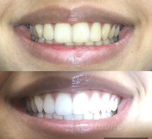 Wybielanie zębów Katowice
