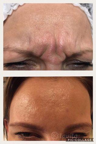 Botox Swarzędz