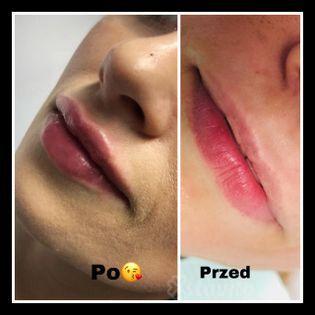 Korekcja kształtu ust Pszczyna