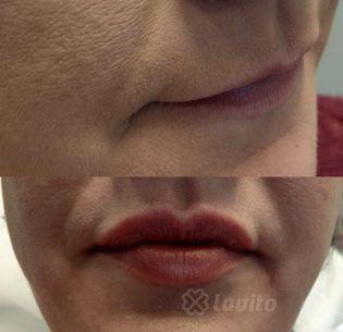 Korekcja kształtu ust Katowice